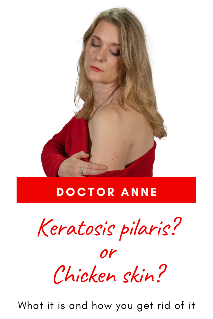 What is Keratosis pilaris and how do you get rid of it? The best products and mistakes you need to avoid.