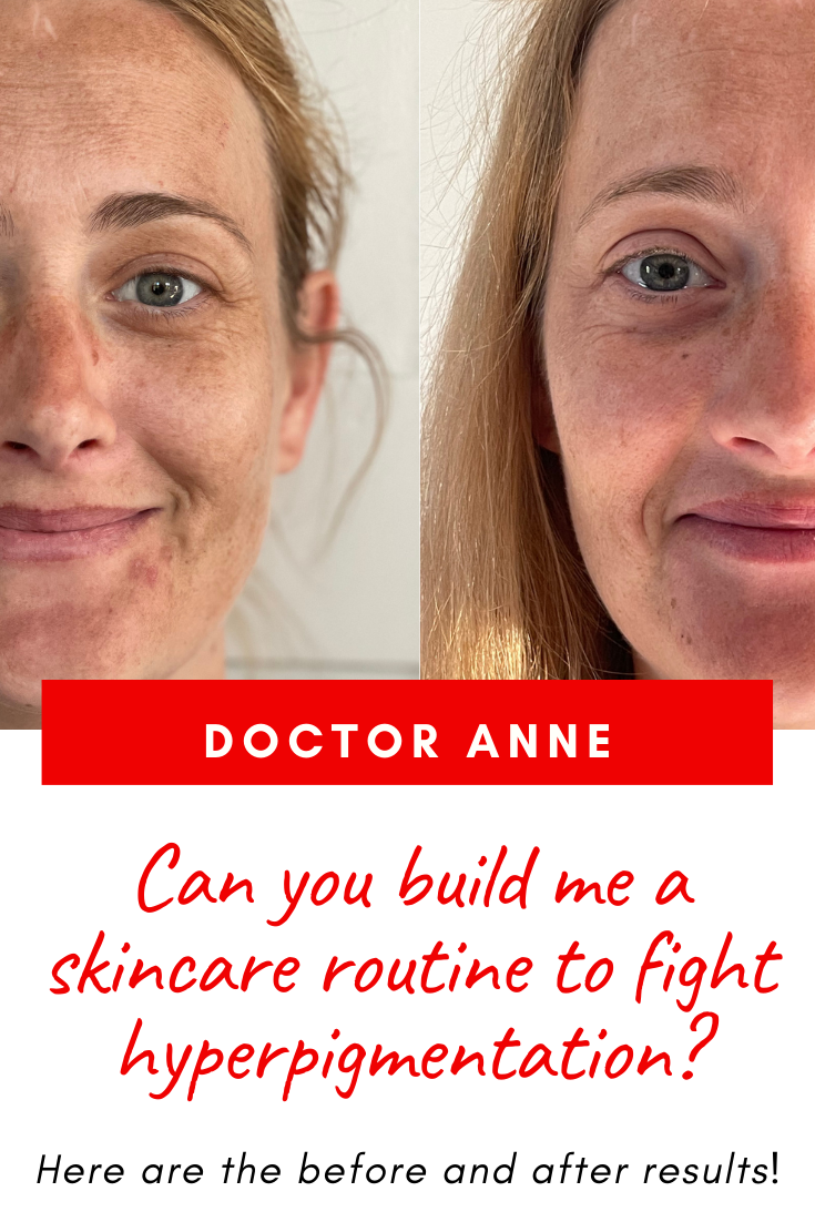The best skincare routine for hyperpigmentation with before and after pictures